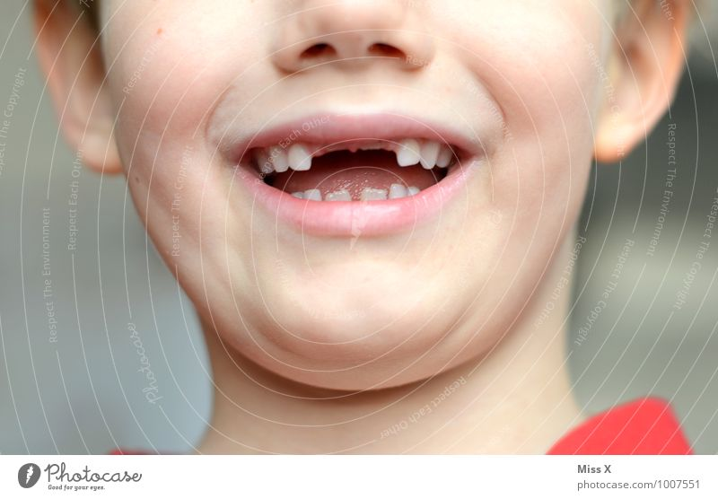 Courage to fill a gap Human being Masculine Child Toddler Boy (child) Infancy Mouth Teeth 1 3 - 8 years Tooth space Gap Dentist Dental care Toothache Growth