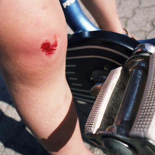 ... error Bicycle Driving Cycling Kiddy bike Child Adhesive plaster Cobblestones Pedestrian precinct Practice Beginning Playing Wound Knee Sudden fall To fall