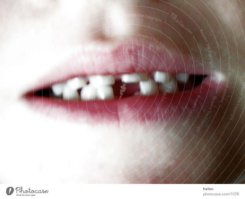 milky_tooth_01 Milk teeth Human being Mouth Teeth