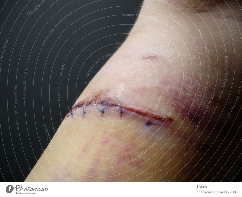 biceps scut Stitching Accident Hematoma Extreme sports Scar Pain Arm Blood Wound
