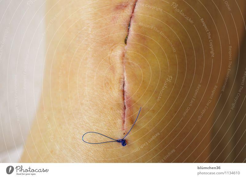 Human being Woman Senior citizen Feminine Legs Health care Going Fear Body Skin 60 years and older Walking Dangerous Female senior Illness Pain