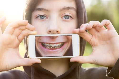 Teen holds cell phone in front of mouth with picture of his mouth Lifestyle Style Design Joy Show your teeth Telecommunications Cellphone PDA Technology