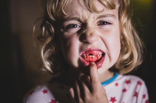 Child Youth (Young adults) Young woman Girl Feminine Fear Infancy Blonde Set of teeth Pain Blood Perturbed 3 - 8 years Gum Tooth space Snarl
