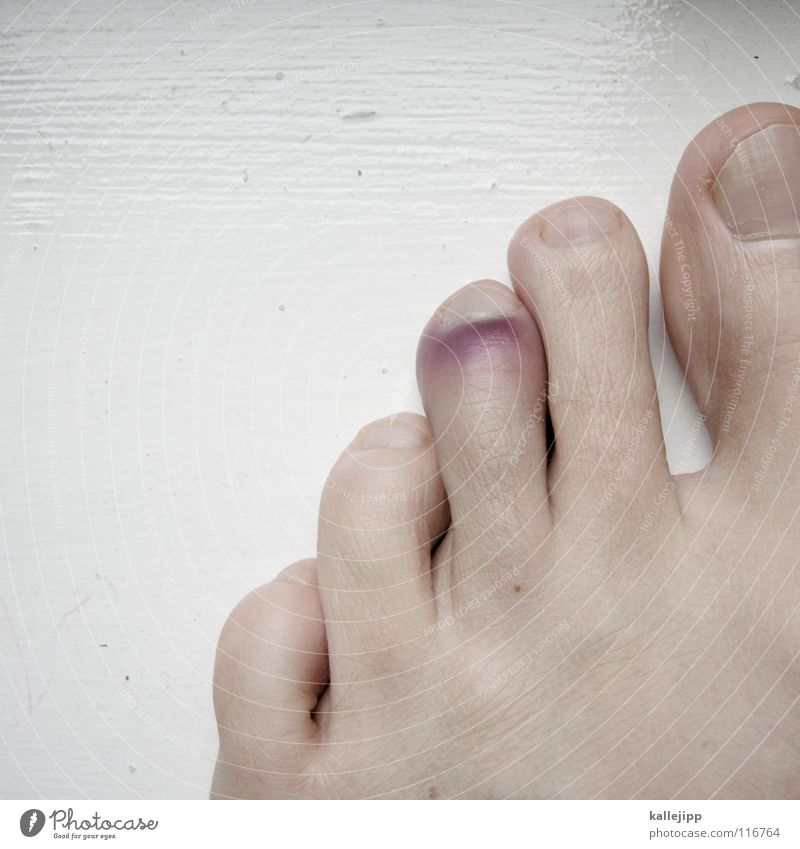Human being Blue Feet Skin Dance Violet Anger Pain Fat Barefoot Broken 5 Accident Toes Insurance Wound