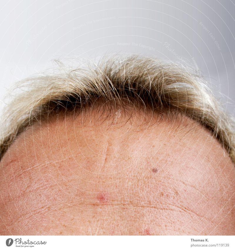 haarausfall bei cortison bindehautentzündung.jpg