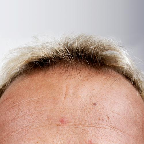 knee Knee Forehead Hair and hairstyles Skin Head