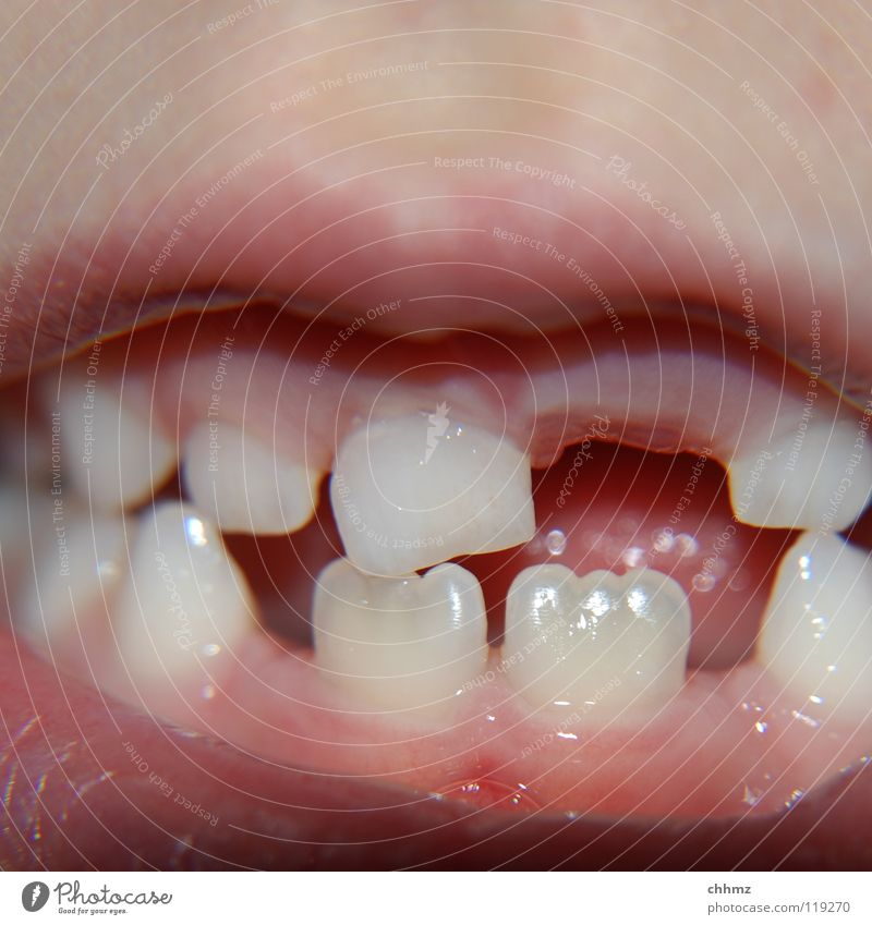Child Mouth Bridge Teeth Lips Tongue Dentist Drill Cavities Tooth space Filling Gum Incisor Milk teeth Amalgam