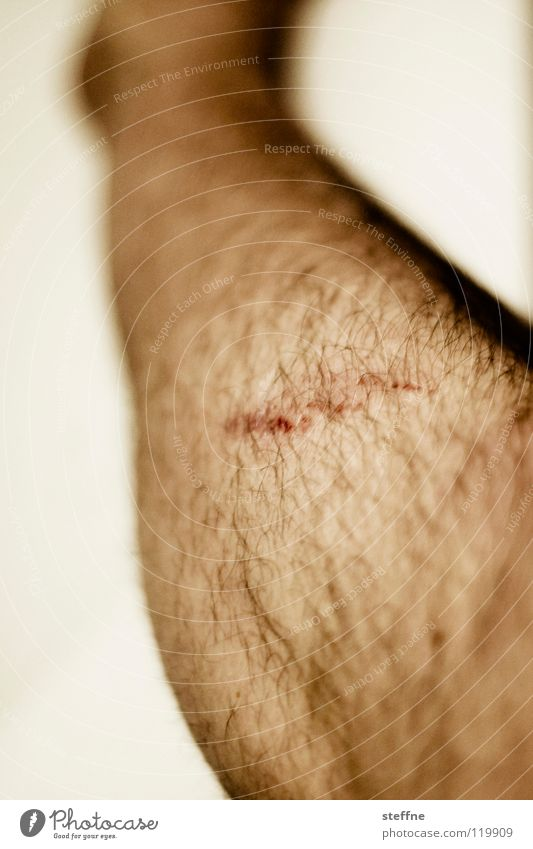 Human being Man Legs Hair Section of image Wound Healing Scratch mark Scrape Abrasion Men's leg