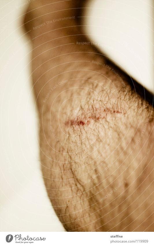 Human being Man Legs Hair Section of image Wound Healing Scratch mark Scrape Abrasion Men's leg