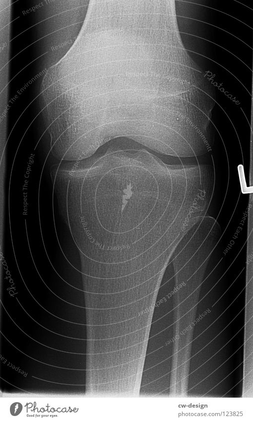 ghost X-ray photograph X-rays Skeleton Thigh Lower leg Tibia Joint Knee cap Ankle joint Osteoarthritis Fracture Illness Left Sudden fall Black Light