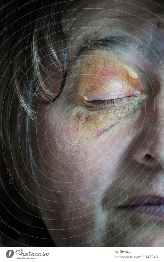 Woman Face Eyes Female senior Illness Pain Sudden fall Force Accident Figure of speech Chastisement Detail of face Contusion Hematoma Black eye