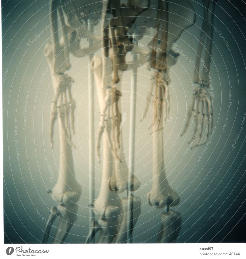 Hand Fingers Doctor Italy Analog Double exposure Skeleton Knee Medium format Thigh Anatomy Spokes Radius Lower leg Ossi Knee cap