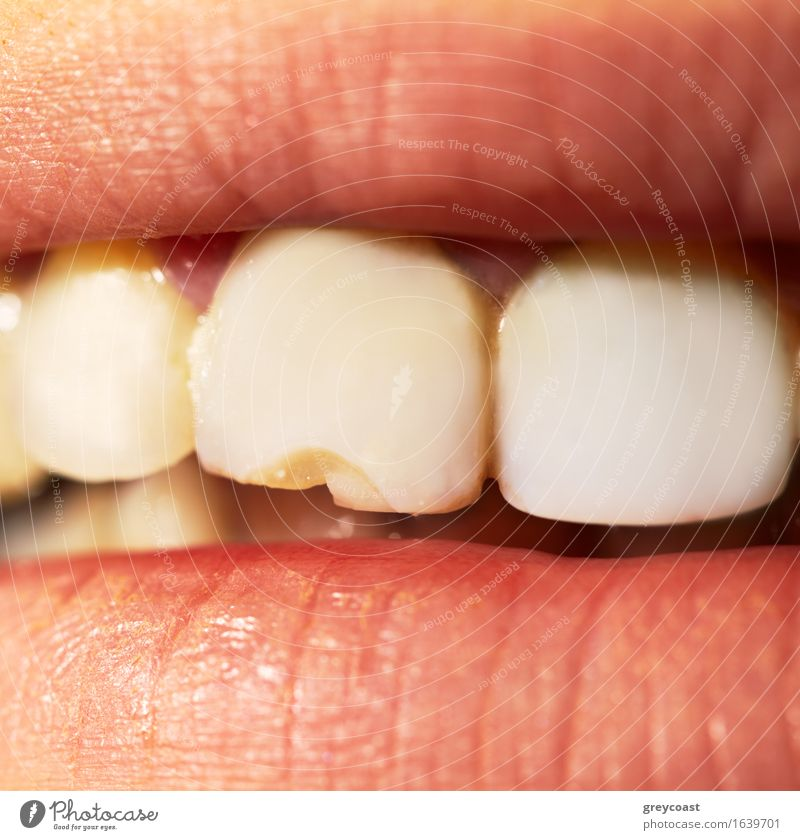 Macro shot of the broken tooth. Human being White Yellow Health care Open Mouth Clean Profession Teeth Lips Examinations and Tests Disgust Dentist Practice