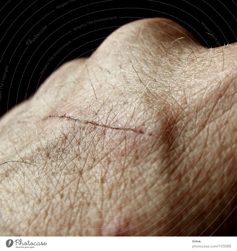 Lifelines #08 Skin Hand Round Scar knuckles Crust Healing Vessel Scrape Scratch mark Hair Pore Isolated Image Dark background Partially visible Detail
