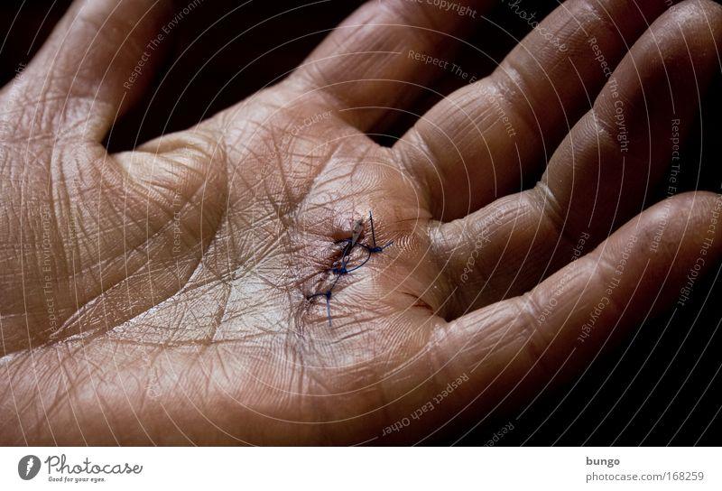 vulgar vita Colour photo Studio shot Manicure Health care Illness Woman Adults Skin Hand Fingers Pain Bungo Sewing Wound Operation Sewing thread Healing Wrinkle