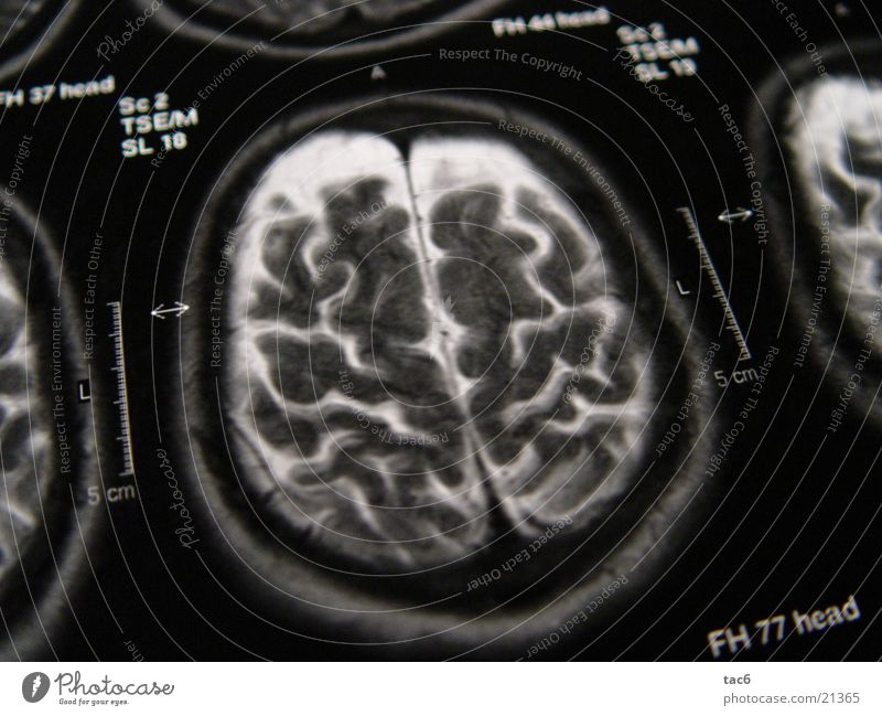 Nuclear Spin Series No.3 Brain and nervous system Electrical equipment Technology Death's head fluoroscopy Head Photography Magnetic resonance imaging Diagnosis