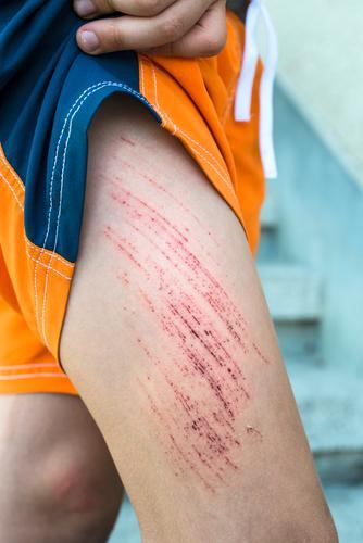 Bruise wound on child's leg Human being Child White Red Boy (child) Infancy Skin Arm Medication Pain Blood Wound Cut Knee Scrape Hurt