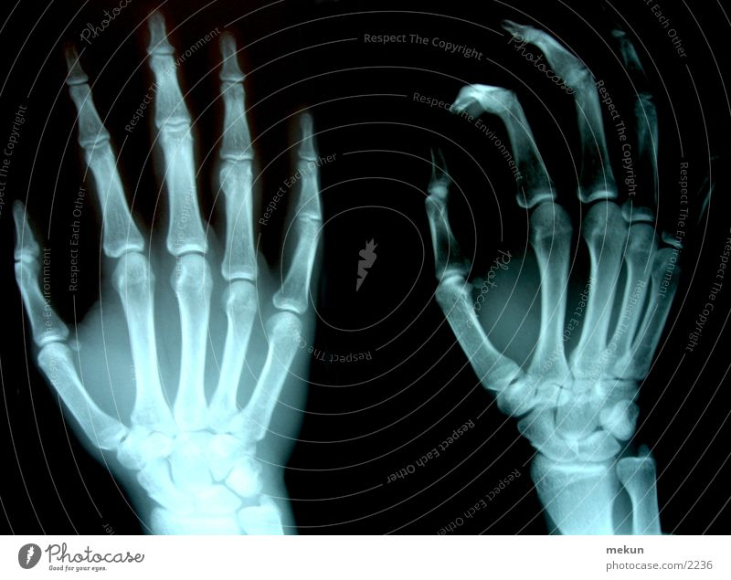 Hand Doctor Health care Skeleton Radiology Photographic technology X-rays