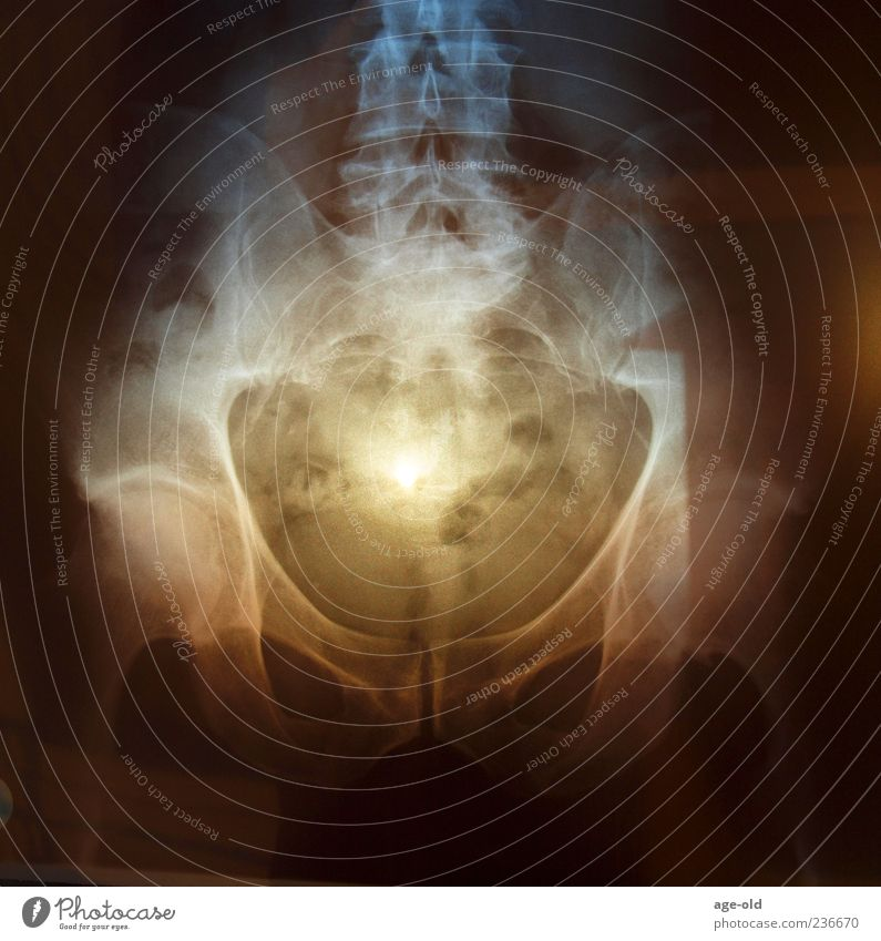 X-ray on sunset Man Adults Hip Blue Brown Yellow Black Bizarre X-ray photograph Sunlight Sunset Radiology Colour photo Exterior shot Experimental Evening