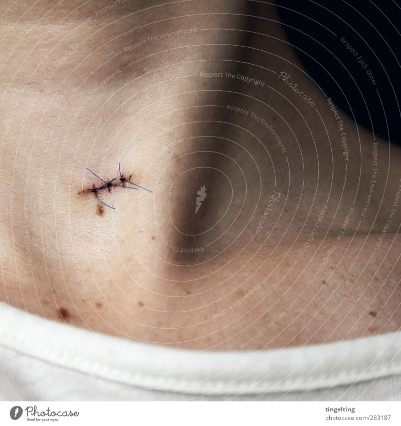 sewn up Body Skin Healthy Medical treatment Illness Feminine Neck Collarbone 1 Human being Health care Stitching stitched Operation Scar Healing Stab wound