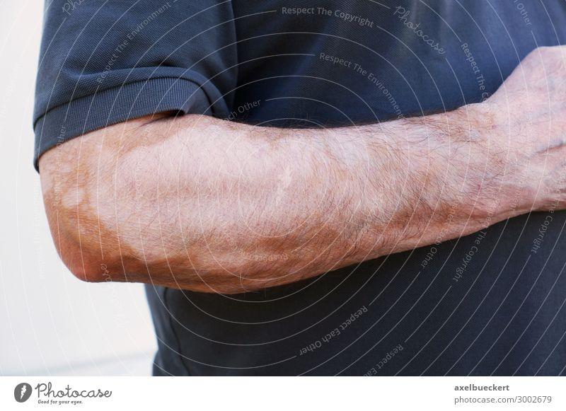 vitiligo or white spot disease or check skin Health care Human being Masculine Man Adults Skin Arm Hand 1 45 - 60 years Illness White Leucopathia acquisita