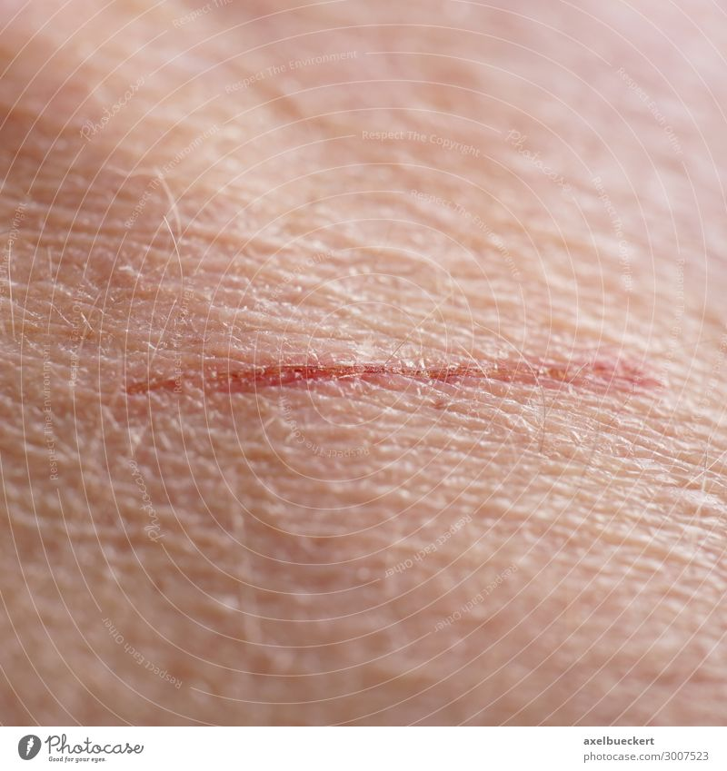 Scratched or scratched skin Health care Human being Adults Skin 1 Authentic Wound Laceration Scratch mark Scrape Crust Small Colour photo Close-up Detail
