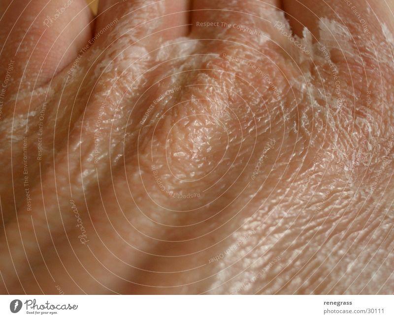 Adhesive on the skin 1 Hand Molt Man Skin