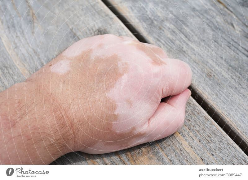 vitiligo or white spot disease Healthy Health care Illness Human being Masculine Man Adults Hand 1 18 - 30 years Youth (Young adults) 30 - 45 years White Skin