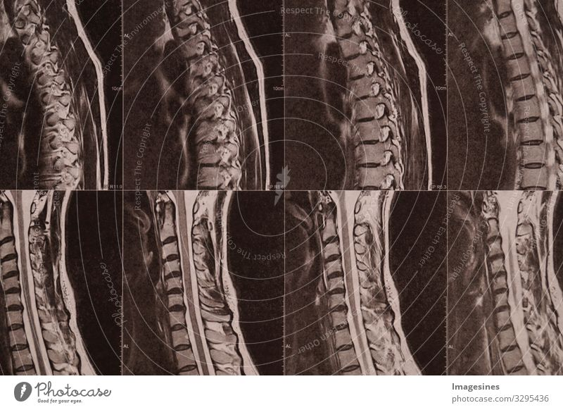 Intervertebral discs Laboratory Doctor Medical technology Medical instrument X-ray photograph Hospital Industry Craft (trade) X-rays MRI Radiology Technology