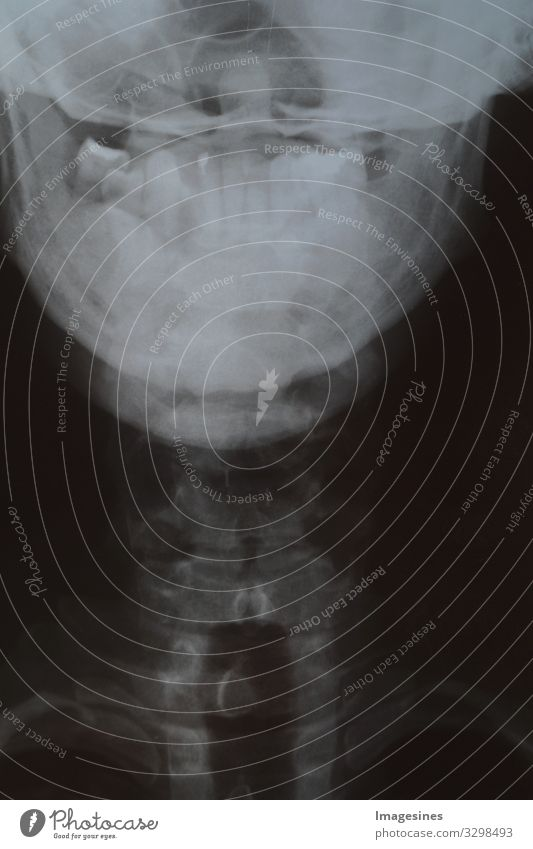 diseased teeth - X-ray of human head and jaw with few teeth. X-ray image of the teeth. Tooth X-ray film, bone loss, patient with removable dentures. Dentist