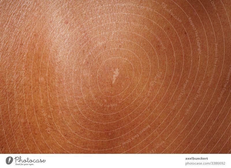 tanned mature skin tanning dermatology lentigo senilis solaris senile freckle skin problem dark pigment pigmented age spot damage damaged caucasian care female