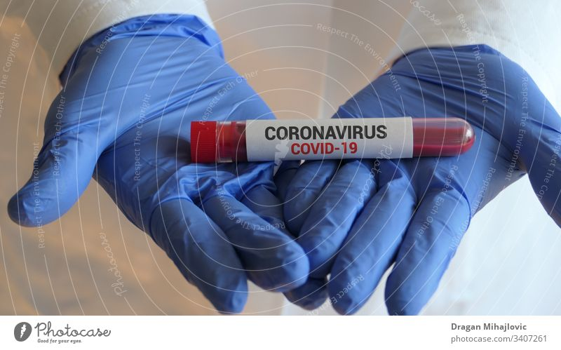 Testing blood for Corona virus 2019-ncov analysis analyzing biohazard biology blood test blood tube care china clinical corona virus coronavirus
