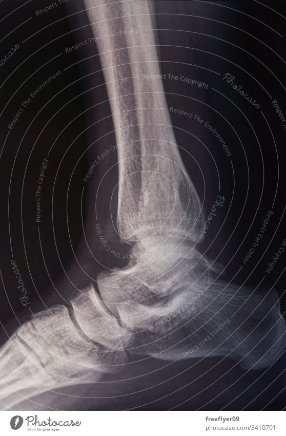 Bone scan of a foot x-ray radiography feet medicine hospital fracture injury rehabilitation radiation xray tomography disease radiology joint leg accident