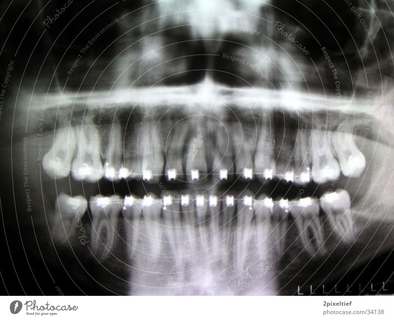 Man Black Metal Teeth Repair Pine Radiology