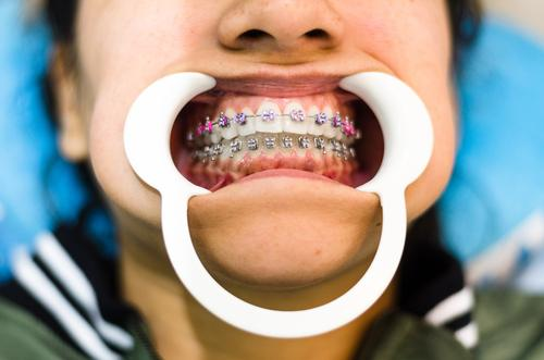 Closeup of young woman's teeth with braces and retractor for mouth. brackets dental adult dentist beautiful care ceramic close concept dentistry equipment