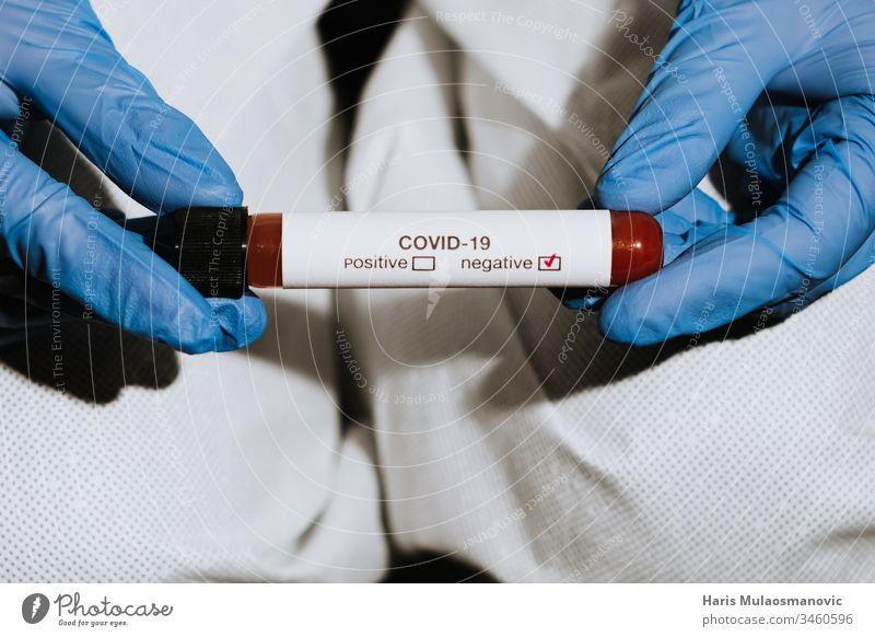 Close up on test tube with blood in hand of doctor showing negative test to coronavirus covid-19 blood sample clinic corona epidemic corona italy corona virus