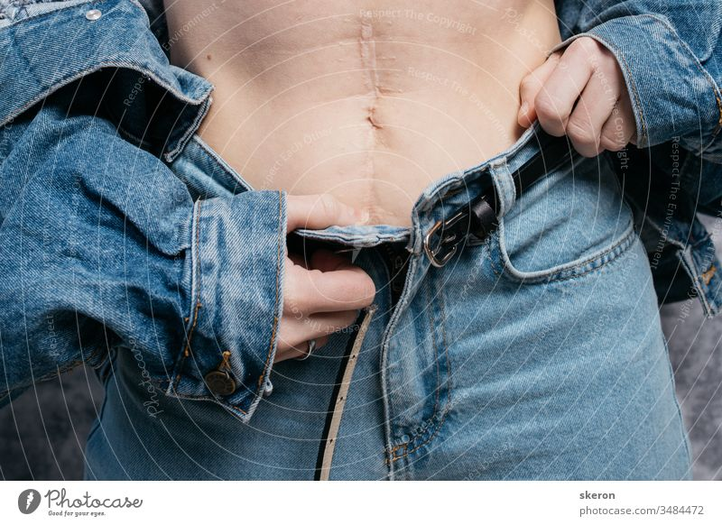 young slender girl shows a scar on her stomach after surgery. woman in stylish clothing: spring denim jacket and pants abdomen abdominal aesthetic anatomy
