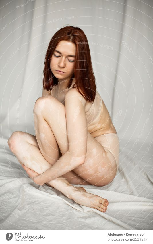 Young woman with pale skin and vitiligo sits on fabric backdrop in natural light in transparent underwear body beauty slim beautiful white naked isolated young