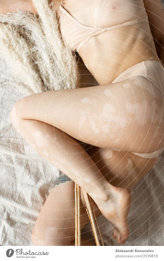 Young woman with pale skin and vitiligo lie on fabric backdrop in natural light in transparent underwear body beauty slim beautiful white naked isolated young
