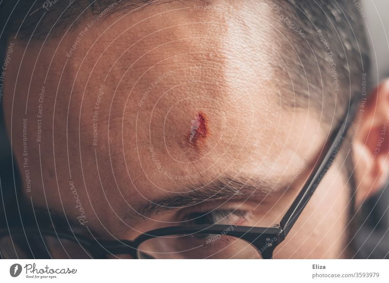 An injured man with a cut on his forehead Wound violation Man Forehead Head Bulge Pain Accident blossom Eyeglasses wounded painful Open Skin Hurt Close-up