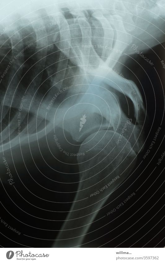 X-ray image X-ray photograph Shoulder Joint Ribs Radiology Bone X-ray diagnostics Health care Diagnosis
