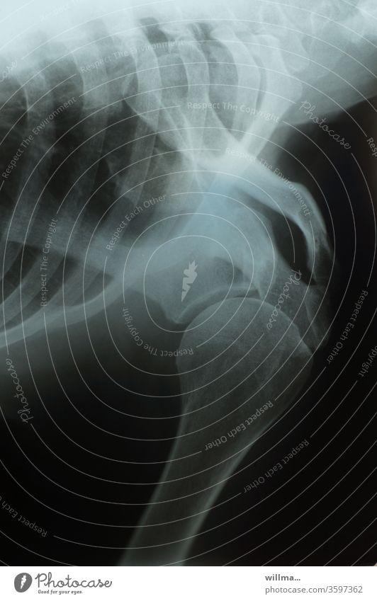 X-ray image X-ray photograph Shoulder Joint Ribs Radiology Bone X-ray diagnostics Health care Diagnosis