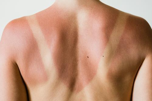 Close-up of a sunburn marks on a woman's back detail outline traces people isolated ultraviolet sunlight tanning beauty natural red health care skin shoulders