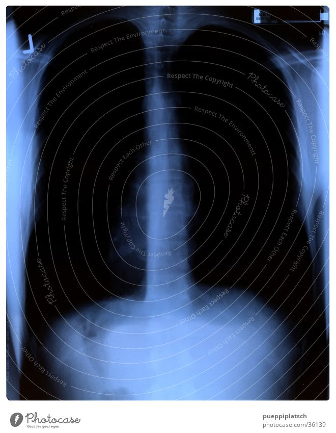 interior shot Lung X-ray photograph Spinal column Thorax Black Man Blue Interior shot Radiology