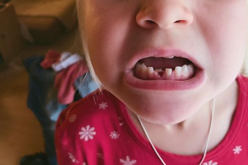 lieblingsmensch   mit biss! Kind Zähne Milchzähne Mund Gebiss beißen Detail Nahaufnahme