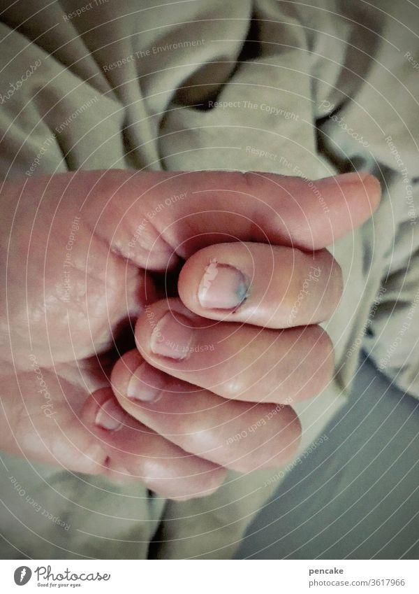 druckerzeugnis | hammer trifft nagel Hand Finger Unfall blauer Nagel Nagelbett Verletzung Hämatom Haushaltsunfall Druck Schlag Schmerz
