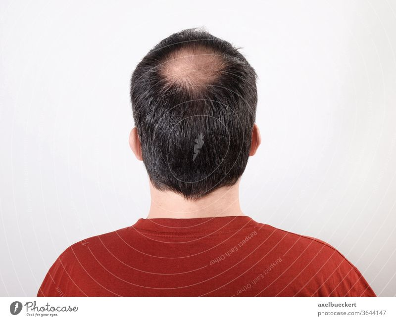 hair loss Hair loss Androgenetic hair loss Alopecia bald spot Upper head Tonsure Back of the head Bleak Man Head Aging baldness Anonymous Healthy more adult