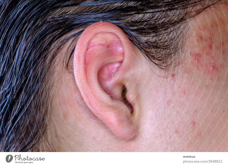 Acne on the skin of the face near the ear macro image. Male skin of the face with inflammations. Teenage Boy's ear human complexion guy anatomy attention eye