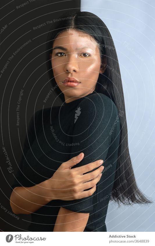 Ethnic model with vitiligo standing near wall at home skin condition emotionless disease sensual beauty seductive woman harmony feminine calm sick unemotional