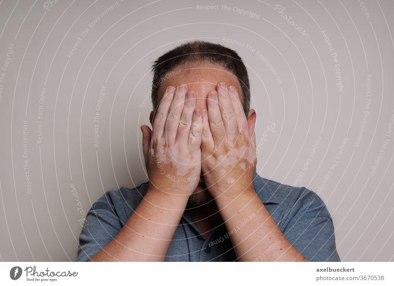 man with Vitiligo hiding face shame hide skin depigmentation depression health disease disorder stigma stigmatized depressed ashamed dermatology